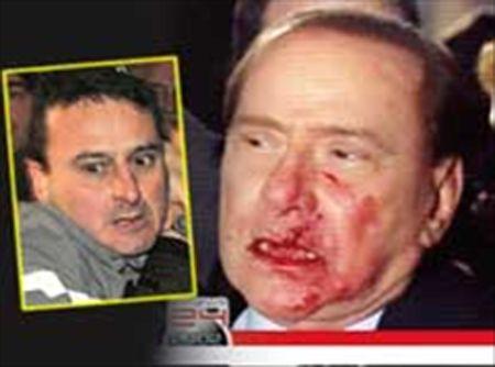 Google cancella fotografie di Berlusconi insanguinato